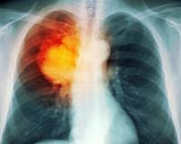 Metastatic non-small cell lung cancer patients may benefit from combined therapy