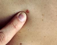 What EVERY South African needs to know about skin cancer...