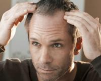 Are you going bald? Do you suffer from cramping in your calves? Familiarise yourself with these (and other) surprising clues of underlying coronary heart disease!