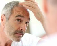 Fill up on these nutrients to prevent baldness and grow healthy hair