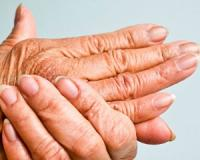The five forms that psoriatic arthritis disease can take