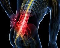 Do you experience pain in your lower back, buttocks and back of your legs?