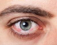 Are your eyes always irritated and dry? These four medications may be to blame!