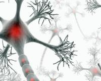 Twelve must-know facts about multiple sclerosis, the second most common cause of neurological disorders