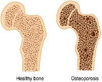 This unexpected sign could warn you of osteoporosis...