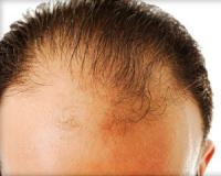 How plant extracts can help with hair loss and maintaining healthy hair