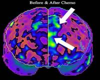 This nutrient combats the negative effects of chemo on the brain...