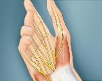 Treat Carpal Tunnel Syndrome Naturally...
