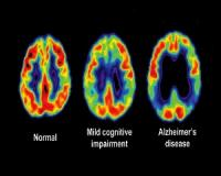 The five stages of Alzheimer's...