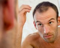 If you're losing hair, this is the nutrient you need!