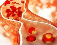 5 Things you didn't know that cause cholesterol...