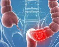 This molecule can stop colorectal cancer from progressing...